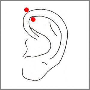 Wir raten Euch dringend davon ab, dieses Piercing in einem Schmuckgeschäft oder bei einem Juwelier machen zu lassen, denn dort wird es meist geschossen und bei diesem Vorgang kann das Gewebe oder der Knorpel einreissen. Dadurch kann es zu Knorpeldeformierungen und Wucherungen kommen!