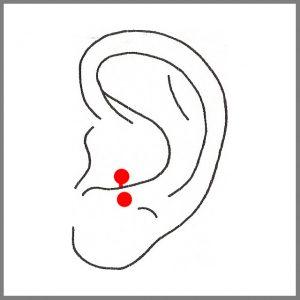 Dieses Piercing befindet sich am unteren Knorpel der Ohrmuschel, direkt über dem Ohrläpchen. Die Abheilphase dauert ca. 2-6 Monate.denn dort wird es meist geschossen und bei diesem Vorgang kann das Gewebe oder der Knorpel einreissen. Dadurch kann es zu Knorpeldeformierungen und Wucherungen kommen!